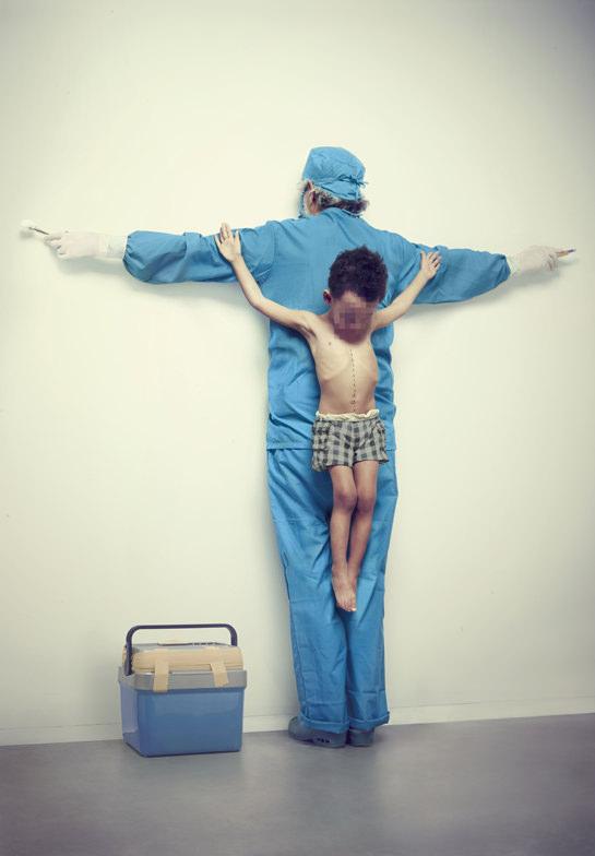 Black market organ trade in which children are the predominant victims